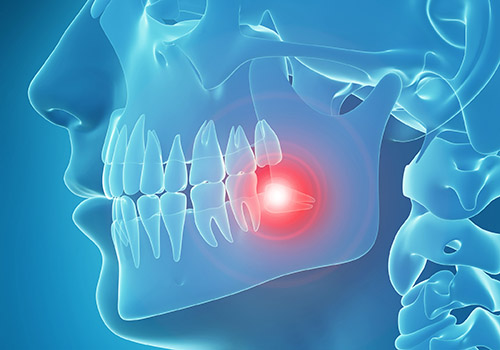 3d rendered, medically accurate 3d illustration of painful tooth