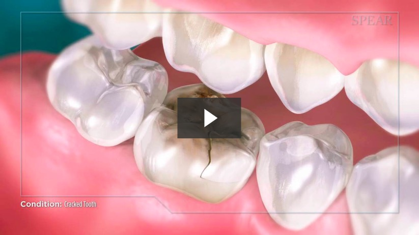 Cracked tooth video screenshot