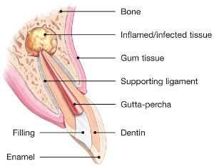 endodontic-surgery-diagram
